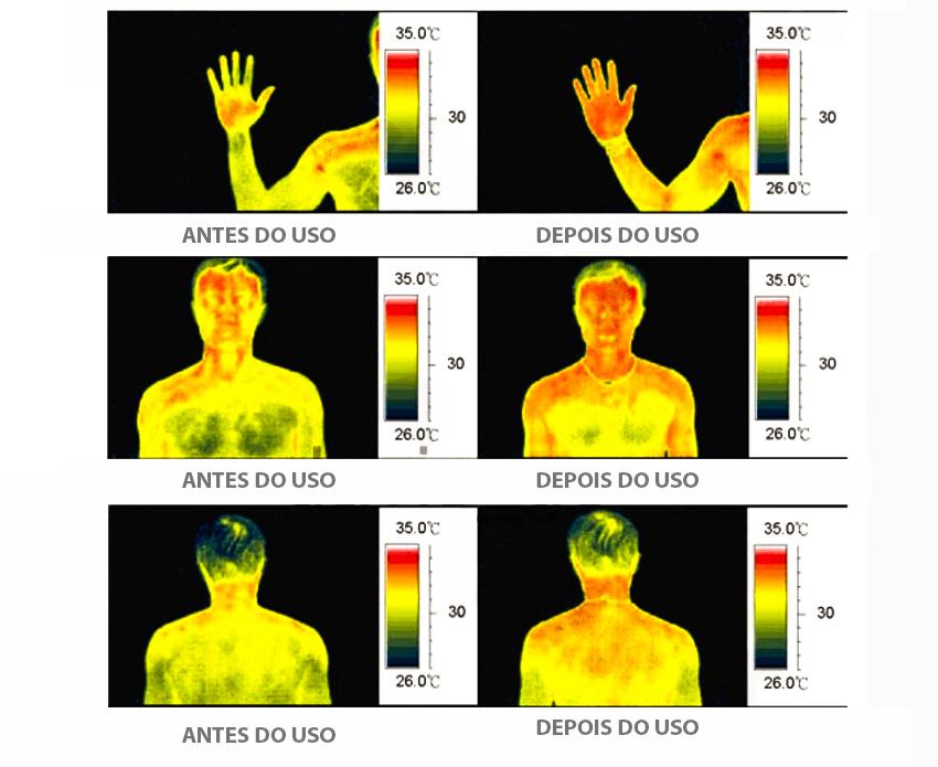 Pulseira Magnética Bioenergética Como Funciona Funções Corpo